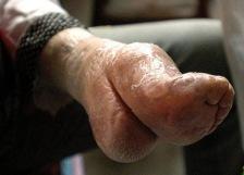 piedi-di-loto-3